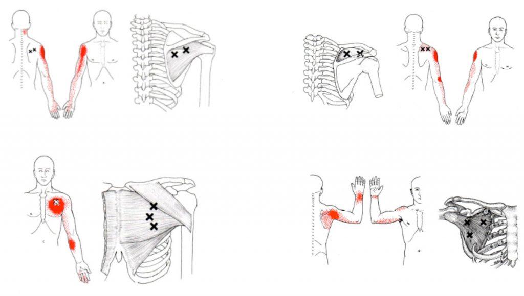 fisioterapia para hombro en malaga